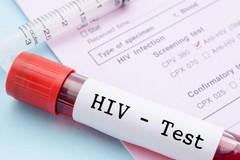 """""""Accesso rapido"""", l'Assessorato al Welfare in prima linea contro l'HIV"""