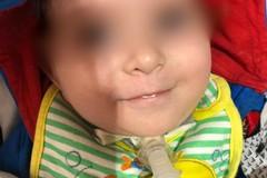 Valenzano si mobilita per il piccolo Paolo, Romanazzi: «A 15 mesi non si dovrebbe combattere per la vita»