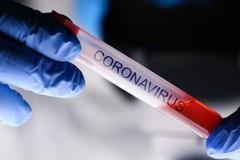 Continua a scendere il numero dei nuovi casi Covid in Puglia, sono 648 su oltre 11mila test