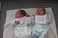 Falsa la notizia dei gemelli nati in due anni diversi