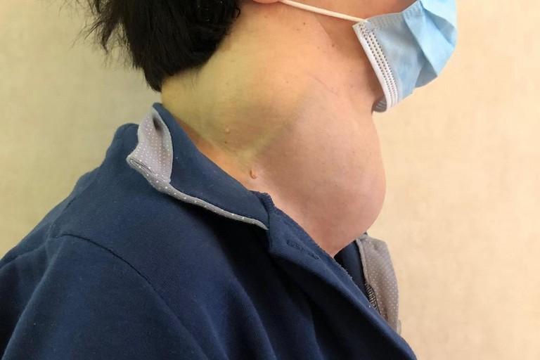 Tumore alla tiroide